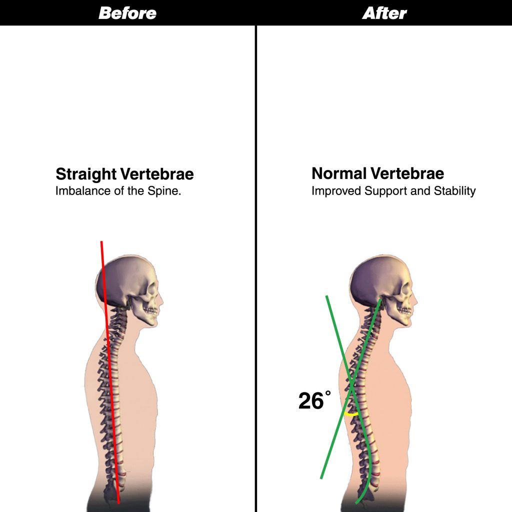 Before and After neck traction device amazon EBC